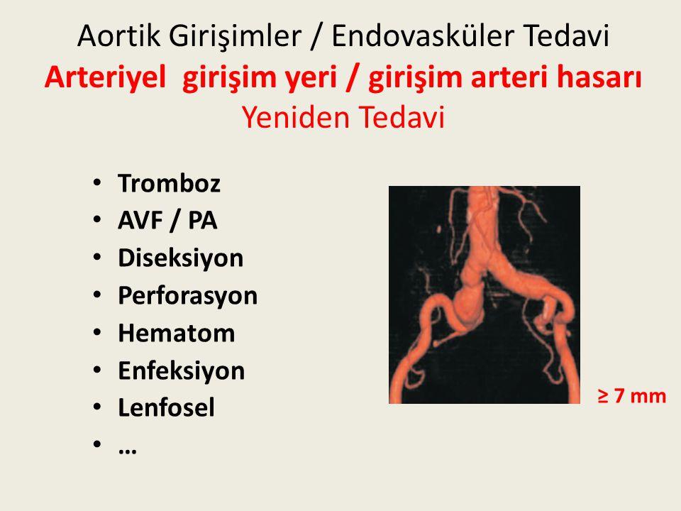 Aortik Girişimler / Endovasküler Tedavi Arteriyel girişim yeri / girişim arteri hasarı Yeniden Tedavi Tromboz AVF / PA Diseksiyon Perforasyon Hematom