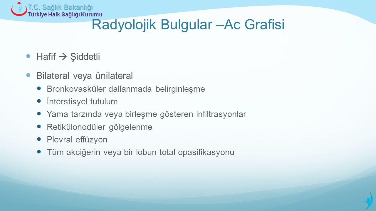 Türkiye Halk Sağlığı Kurumu T.C. Sağlık Bakanlığı Radyolojik Bulgular –Ac Grafisi Hafif  Şiddetli Bilateral veya ünilateral Bronkovasküler dallanmada