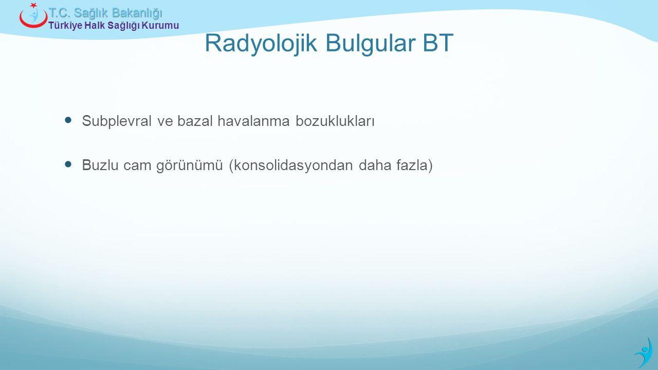 Türkiye Halk Sağlığı Kurumu T.C. Sağlık Bakanlığı Radyolojik Bulgular BT Subplevral ve bazal havalanma bozuklukları Buzlu cam görünümü (konsolidasyond