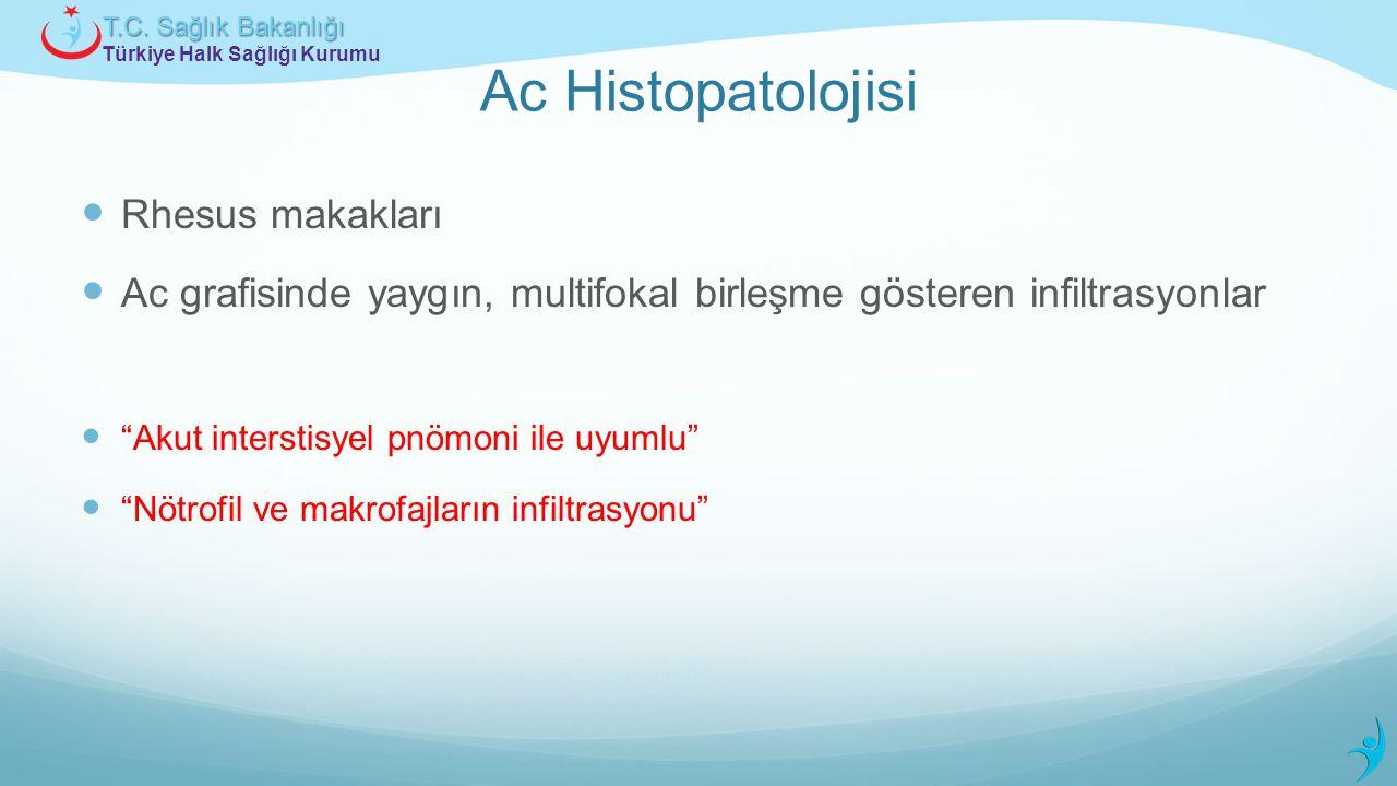 Türkiye Halk Sağlığı Kurumu T.C. Sağlık Bakanlığı Ac Histopatolojisi Rhesus makakları Ac grafisinde yaygın, multifokal birleşme gösteren infiltrasyonl