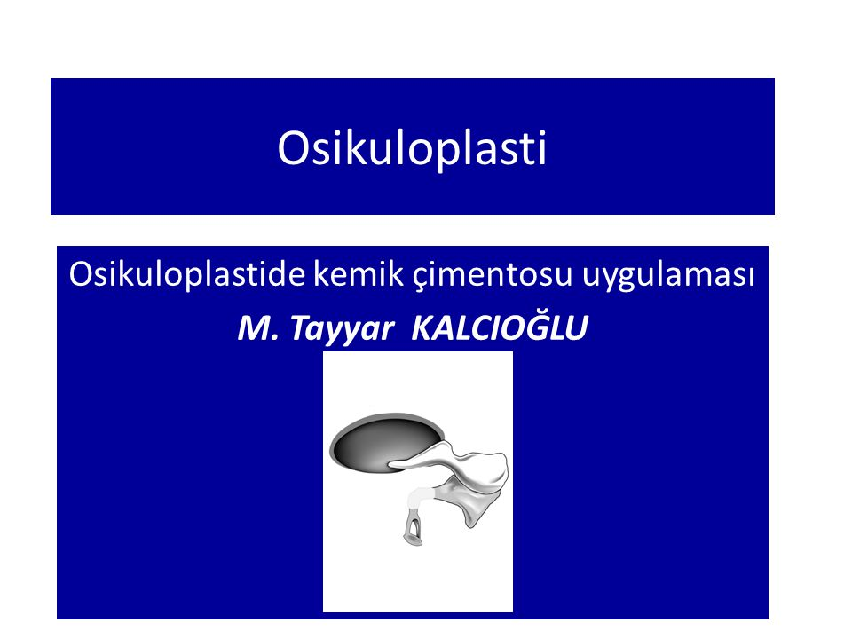 Osikuloplasti Osikuloplastide kemik çimentosu uygulaması M. Tayyar KALCIOĞLU