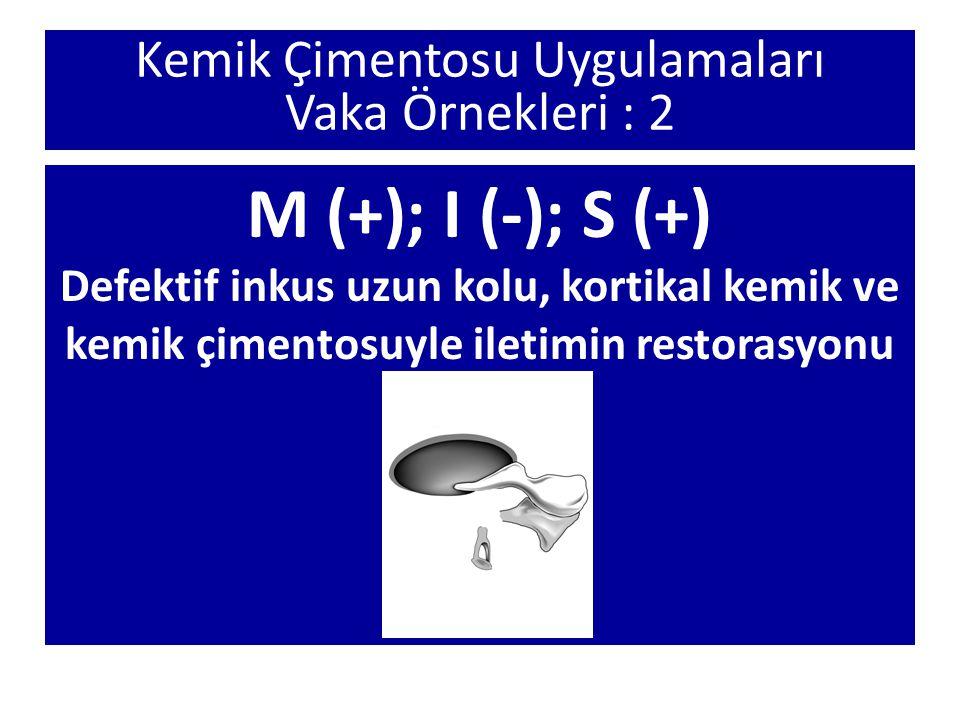 Kemik Çimentosu Uygulamaları Vaka Örnekleri : 2 M (+); I (-); S (+) Defektif inkus uzun kolu, kortikal kemik ve kemik çimentosuyle iletimin restorasyo