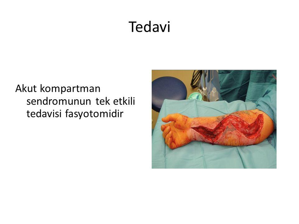 Tedavi Akut kompartman sendromunun tek etkili tedavisi fasyotomidir