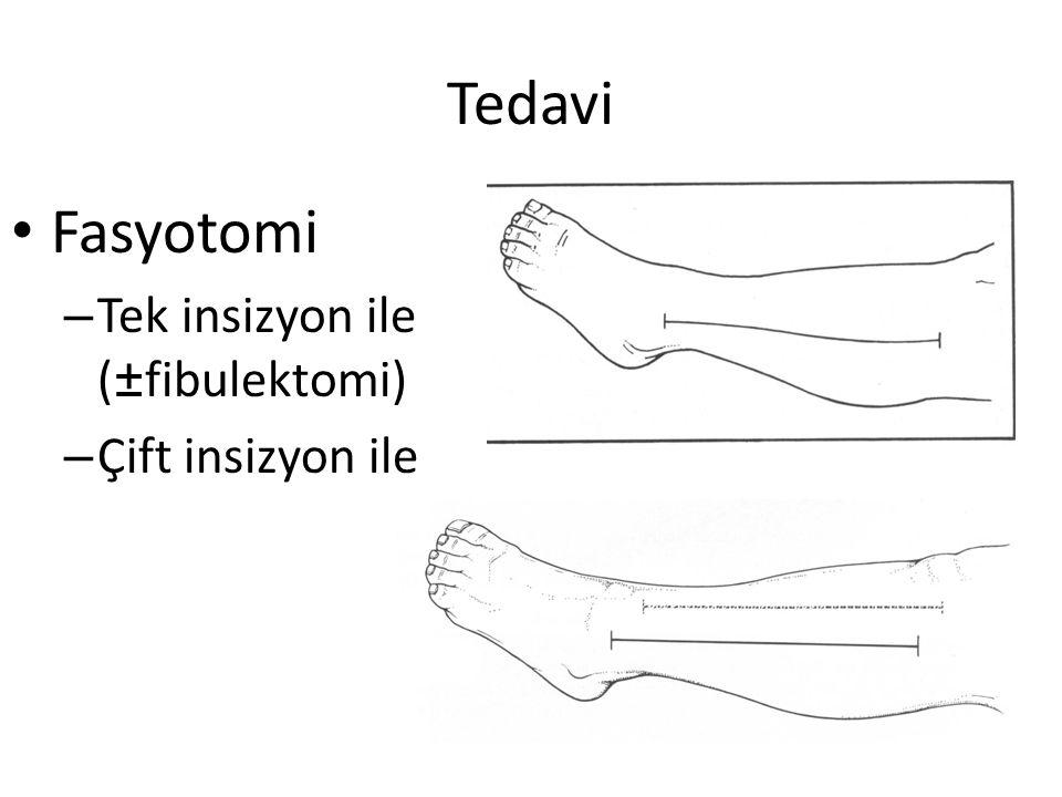 Tedavi Fasyotomi – Tek insizyon ile (±fibulektomi) – Çift insizyon ile