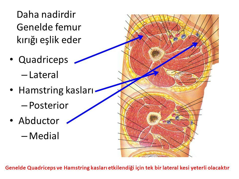 Daha nadirdir Genelde femur kırığı eşlik eder Quadriceps – Lateral Hamstring kasları – Posterior Abductor – Medial Genelde Quadriceps ve Hamstring kas
