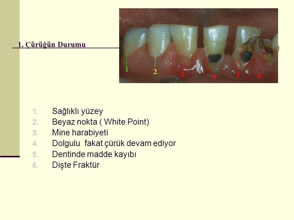 1.Çürüğün Durumu 1. Sağlıklı yüzey 2. Beyaz nokta ( White Point) 3.