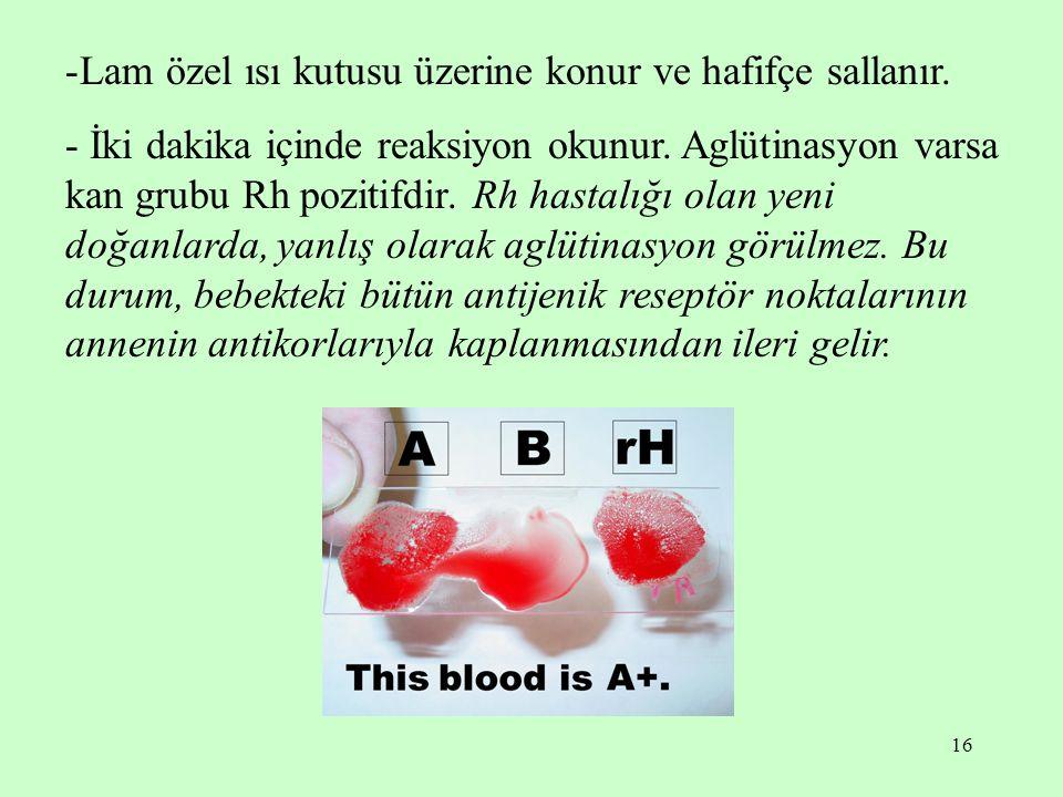 16 -Lam özel ısı kutusu üzerine konur ve hafifçe sallanır. - İki dakika içinde reaksiyon okunur. Aglütinasyon varsa kan grubu Rh pozitifdir. Rh hastal