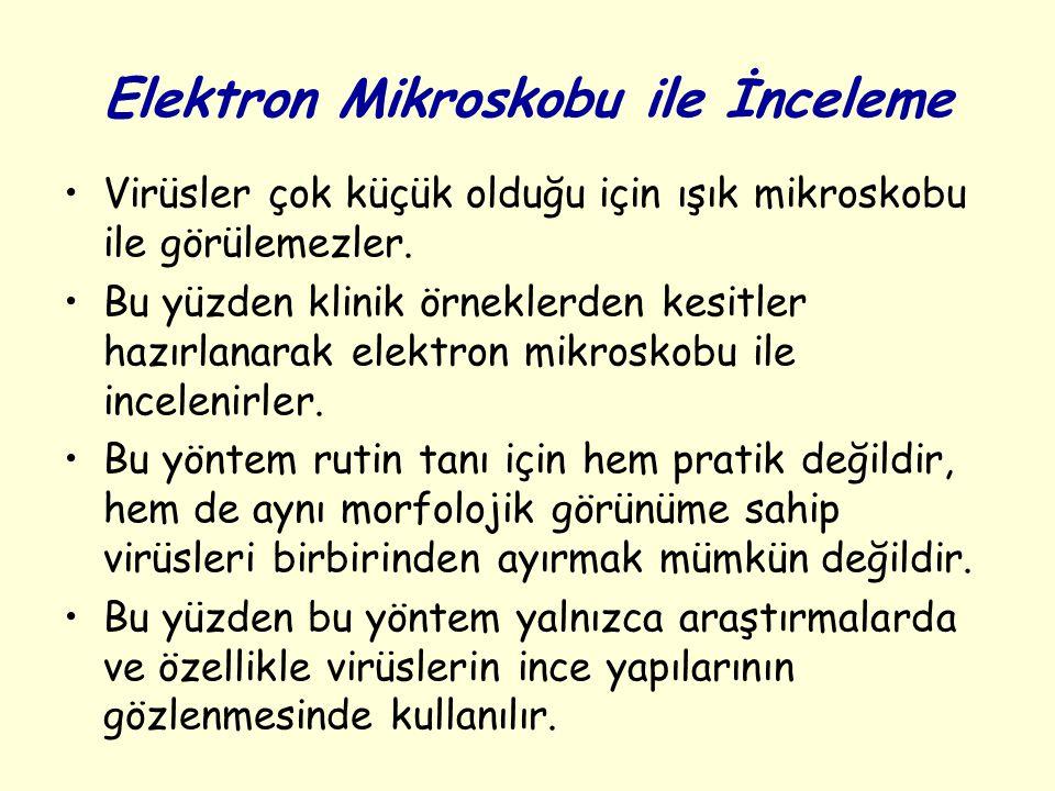 Elektron Mikroskobu ile İnceleme Virüsler çok küçük olduğu için ışık mikroskobu ile görülemezler.