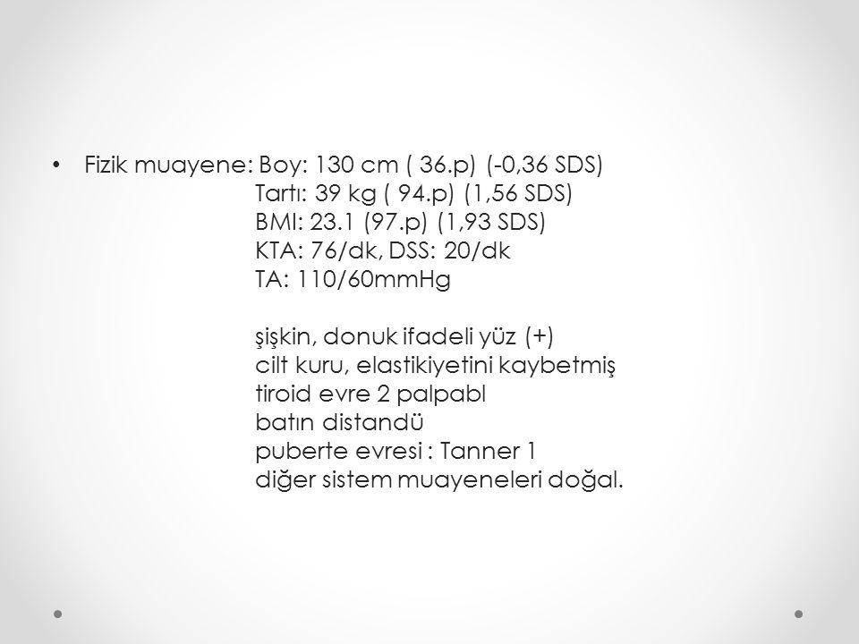 Fizik muayene: Boy: 130 cm ( 36.p) (-0,36 SDS) Tartı: 39 kg ( 94.p) (1,56 SDS) BMI: 23.1 (97.p) (1,93 SDS) KTA: 76/dk, DSS: 20/dk TA: 110/60mmHg şişkin, donuk ifadeli yüz (+) cilt kuru, elastikiyetini kaybetmiş tiroid evre 2 palpabl batın distandü puberte evresi : Tanner 1 diğer sistem muayeneleri doğal.