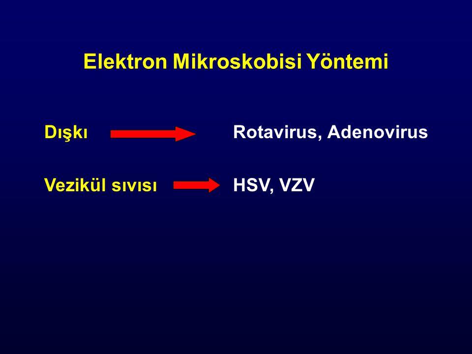 Elektron Mikroskobisi Yöntemi DışkıRotavirus, Adenovirus Vezikül sıvısıHSV, VZV