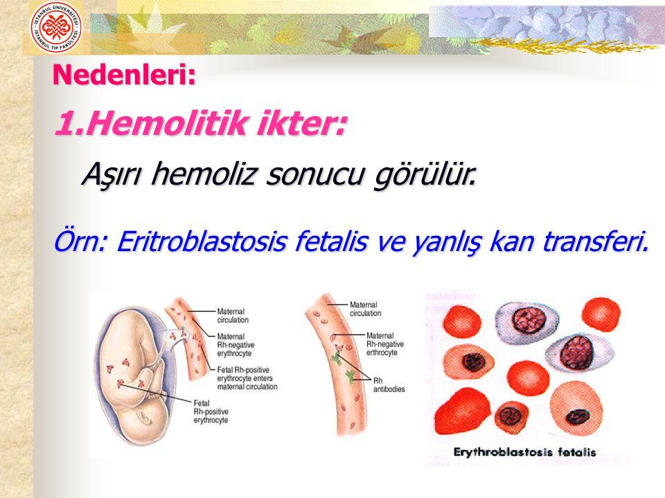 Karaciğer hücrelerinin safra sentezlememesi sonucu kan bilirubin düzeyi yükselir.