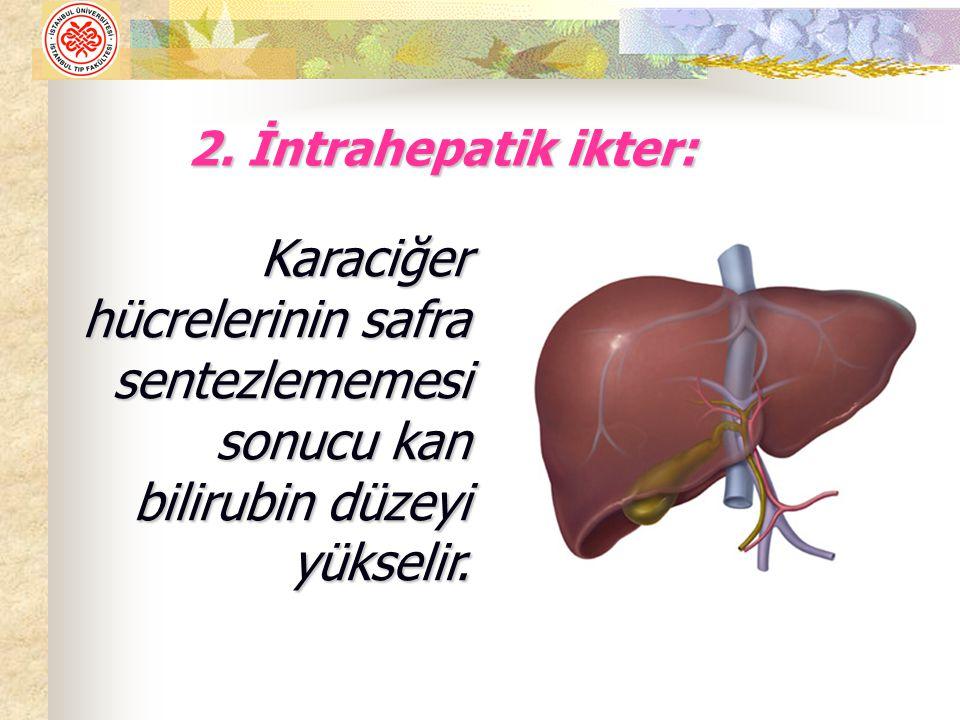 1- DNA Sentezi Bozukluğuna Bağlı Anemiler a).B 12 vit.