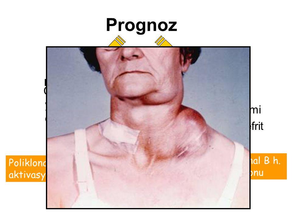 Prognoz Non-Hodgkin Lenfoma riski 44 kez artmıştır. Çoğu kez B hücreli lenfomalar gelişir. Başlangıçta benigndir. Poliklonal B h. aktivasyonu Poli, ol