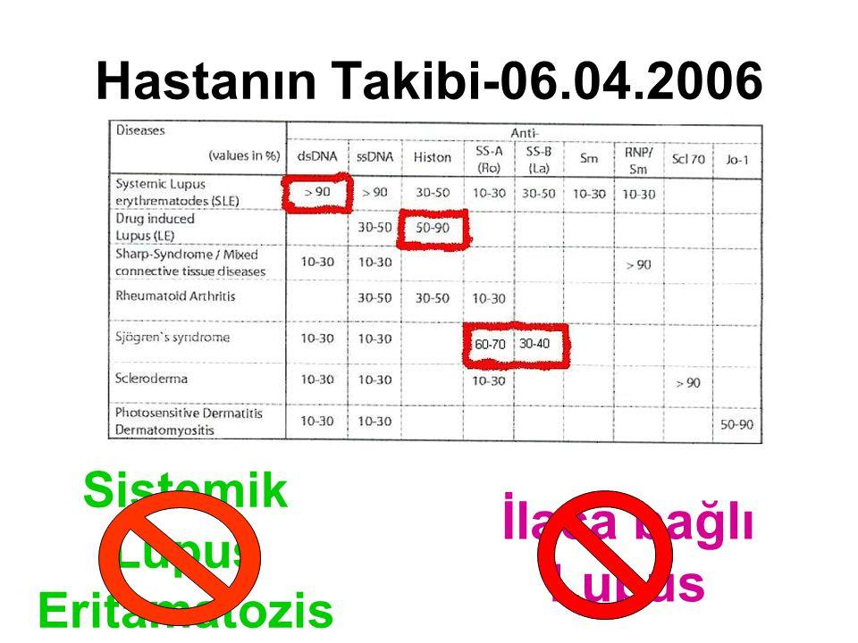 Hastanın Takibi-06.04.2006 Sistemik Lupus Eritamatozis İlaca bağlı Lupus