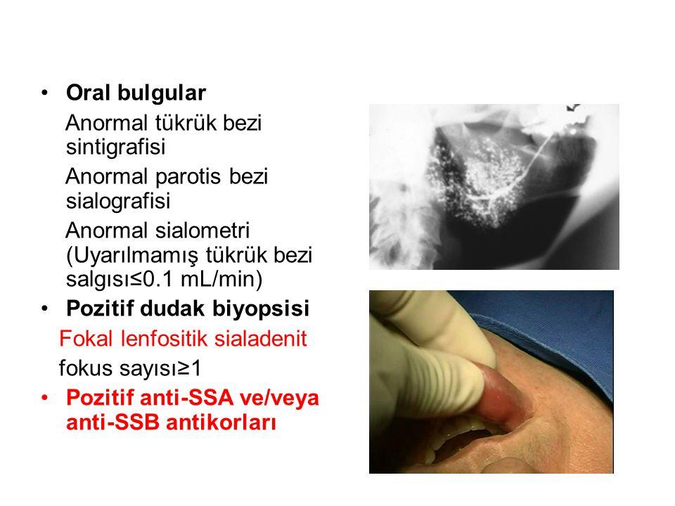 Oral bulgular Anormal tükrük bezi sintigrafisi Anormal parotis bezi sialografisi Anormal sialometri (Uyarılmamış tükrük bezi salgısı≤0.1 mL/min) Pozit