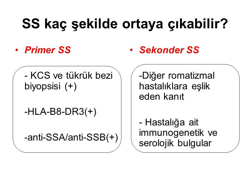 The American-European Consensus Group Tanı Kriterleri Oküler Semptomlar Göz kuruluğu > 3 ay Suni göz yaşı kullanımı > Günde 3 kez Yabancı cisim hissi Oral Semptomlar Ağız kuruluğu > 3 ay Şişmiş tükrük bezleri Yutmak için sıvı ihtiyacı Oküler bulgular Schirmer testi ≤ 5 mm/5 dk her iki gözde(+) Rose bengal boyası (  4 van Bijsterveld skor)