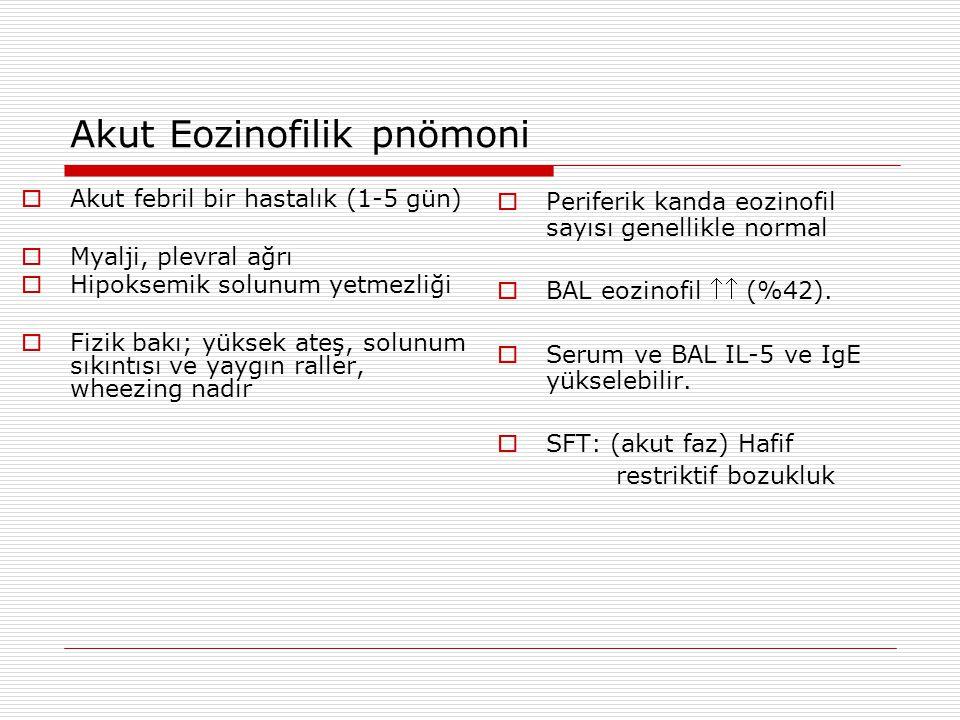 Akut Eozinofilik pnömoni  Akut febril bir hastalık (1-5 gün)  Myalji, plevral ağrı  Hipoksemik solunum yetmezliği  Fizik bakı; yüksek ateş, solunu