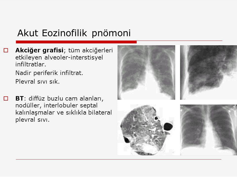 Akut Eozinofilik pnömoni  Akciğer grafisi; tüm akciğerleri etkileyen alveoler-interstisyel infiltratlar. Nadir periferik infiltrat. Plevral sıvı sık.