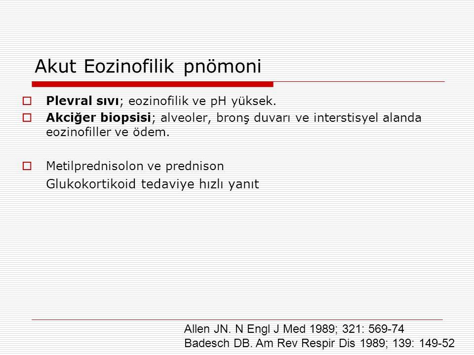 Akut Eozinofilik pnömoni  Plevral sıvı; eozinofilik ve pH yüksek.  Akciğer biopsisi; alveoler, bronş duvarı ve interstisyel alanda eozinofiller ve ö