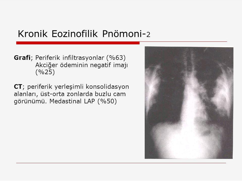Kronik Eozinofilik Pnömoni- 2 Grafi; Periferik infiltrasyonlar (%63) Akciğer ödeminin negatif imajı (%25) CT; periferik yerleşimli konsolidasyon alanl