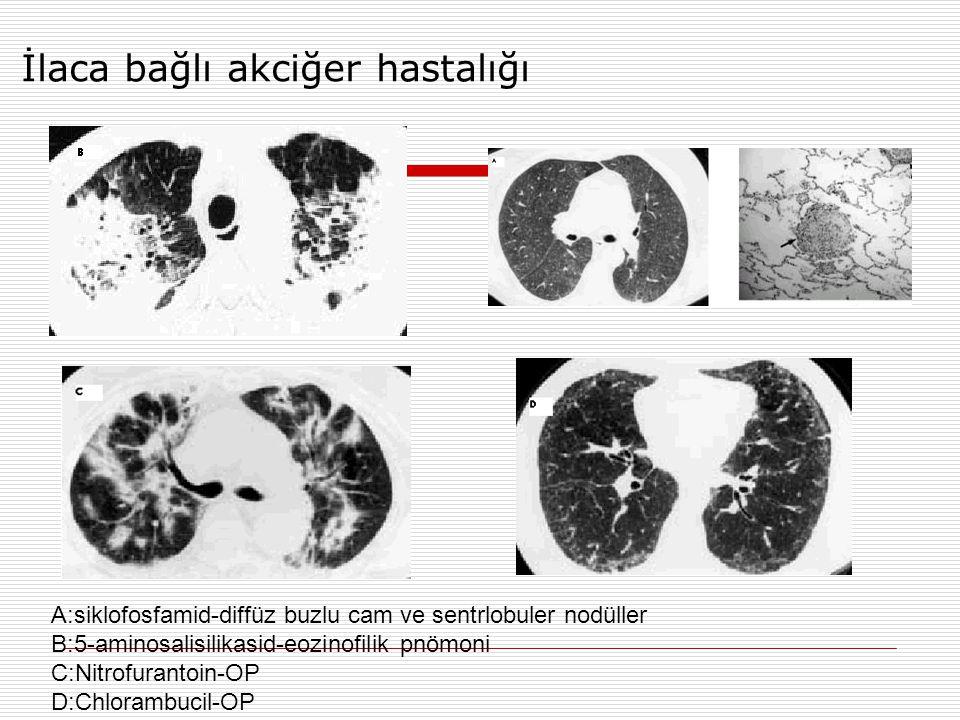 İlaca bağlı akciğer hastalığı A:siklofosfamid-diffüz buzlu cam ve sentrlobuler nodüller B:5-aminosalisilikasid-eozinofilik pnömoni C:Nitrofurantoin-OP