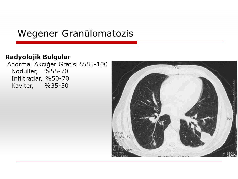 Wegener Granülomatozis Radyolojik Bulgular Anormal Akciğer Grafisi %85-100 Noduller, %55-70 Infiltratlar, %50-70 Kaviter, %35-50