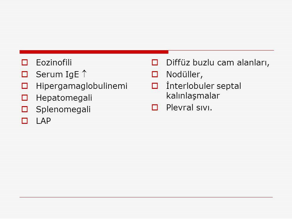 Eozinofilik Akciğer Hastalıkları  Havayolları Astım ABPA Bronkosentrik granülomatozis Eozinofilik bronşit  Akciğer parankimi Bakteriyel infeksiyonlar (Brusella, Mikobakteri) Fungal infeksiyonlar (Aspergillus,Koksidioidomikoz) Paraziter infeksiyonlar AIDS ilişkili PCP Tropikal pulmoner eozinofili sendromu Visseral larva migrans İnterstisyel akciğer hastalığı UIP, Sarkoidoz, SLE, Eozinofilik Granüloma Basit pulmoner eozinofili Löeffler sendromu Akut eozinofilik pnömoni Kronik eozinofilik pnömoni İlaca bağlı eozinofilik pnömoni  Akciğer vasküler sistemi İdiopatik hipereozinofilik sendrom Allerjik anjiitis ve granülomatosis Churg Strauss Sendromu  Neoplazi Hodgkin Hastalığı Akciğer kanseri Ribeiro JD, Fischer GB.