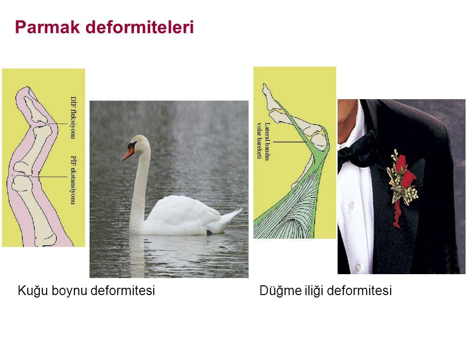 Kuğu boynu deformitesi Parmak deformiteleri Düğme iliği deformitesi