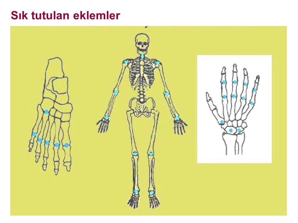 İki önemli bulgusu vardır: Eklem aralığında daralma: kıkırdak harabiyeti Kemik erozyonları: kemik yıkımı Diğerleri, Yumuşak doku şişliği, Periartiküler osteoporoz, Subluksasyonlar, Sekonder osteoartroz Erken RA: Tanı