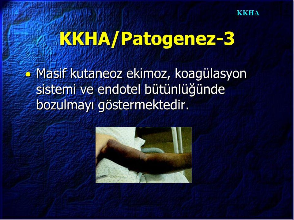 KKHA KKHA/Patogenez-3  Masif kutaneoz ekimoz, koagülasyon sistemi ve endotel bütünlüğünde bozulmayı göstermektedir.