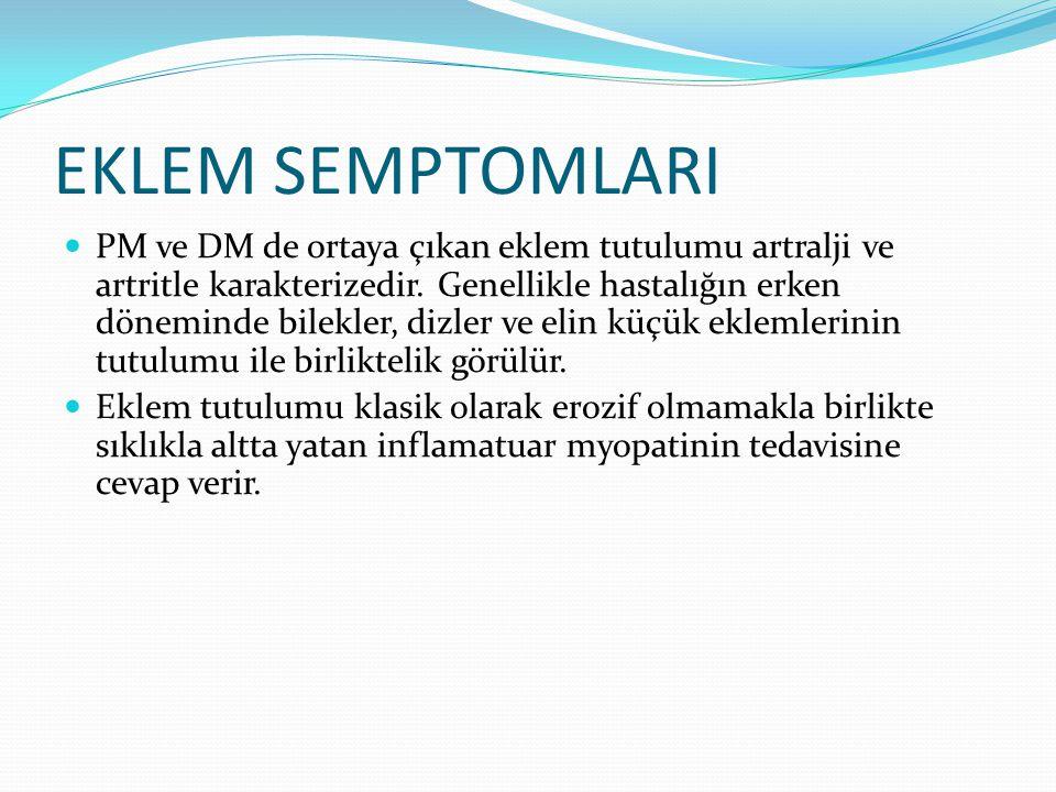 EKLEM SEMPTOMLARI PM ve DM de ortaya çıkan eklem tutulumu artralji ve artritle karakterizedir.