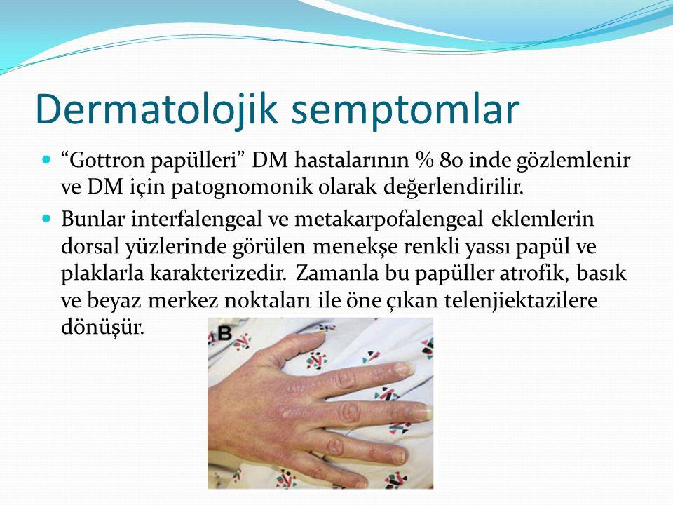 """Dermatolojik semptomlar """"Gottron papülleri"""" DM hastalarının % 80 inde gözlemlenir ve DM için patognomonik olarak değerlendirilir. Bunlar interfalengea"""