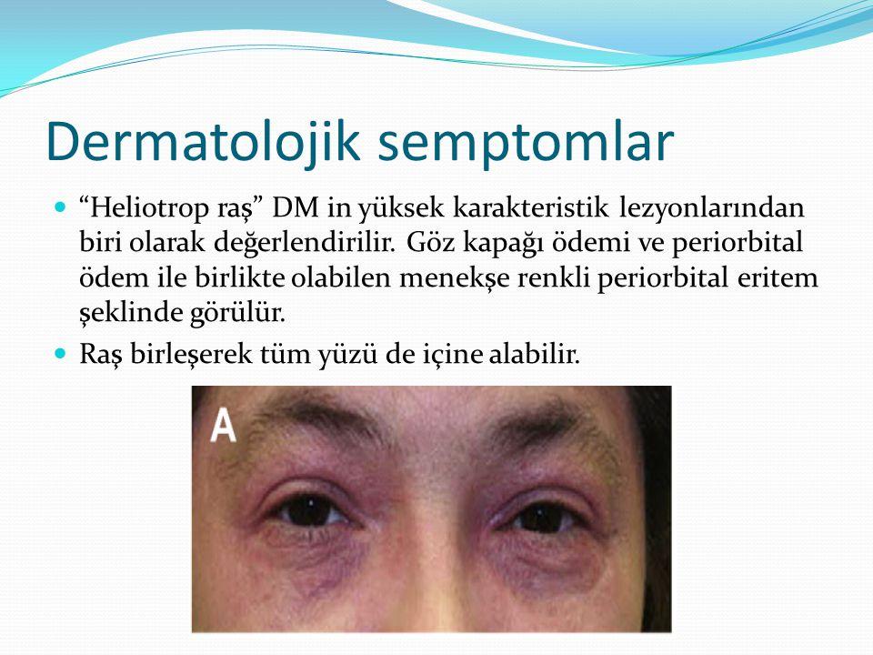 """Dermatolojik semptomlar """"Heliotrop raş"""" DM in yüksek karakteristik lezyonlarından biri olarak değerlendirilir. Göz kapağı ödemi ve periorbital ödem il"""