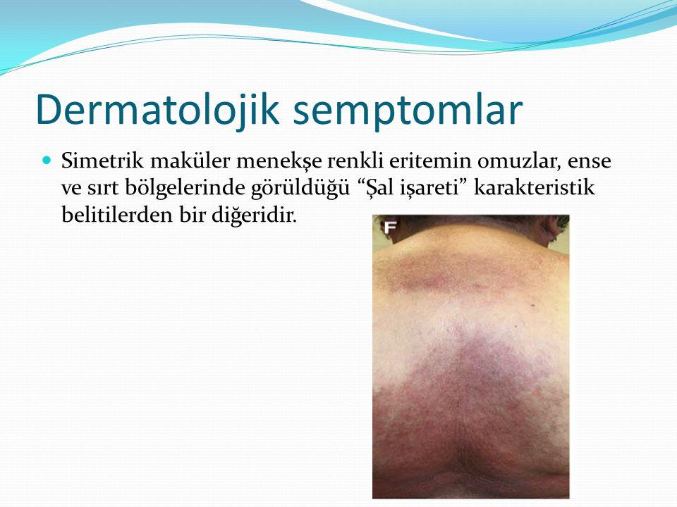 """Dermatolojik semptomlar Simetrik maküler menekşe renkli eritemin omuzlar, ense ve sırt bölgelerinde görüldüğü """"Şal işareti"""" karakteristik belitilerden"""
