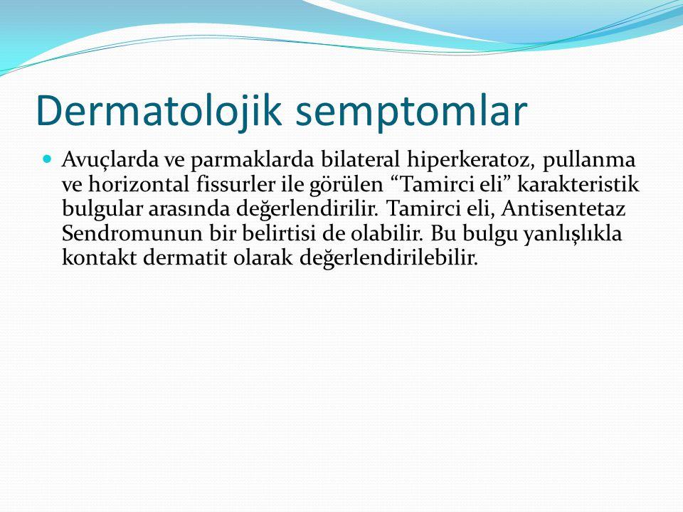 """Dermatolojik semptomlar Avuçlarda ve parmaklarda bilateral hiperkeratoz, pullanma ve horizontal fissurler ile görülen """"Tamirci eli"""" karakteristik bulg"""