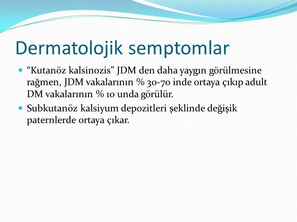 """Dermatolojik semptomlar """"Kutanöz kalsinozis"""" JDM den daha yaygın görülmesine rağmen, JDM vakalarının % 30-70 inde ortaya çıkıp adult DM vakalarının %"""