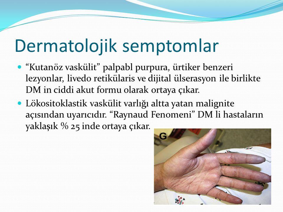 Dermatolojik semptomlar Kutanöz vaskülit palpabl purpura, ürtiker benzeri lezyonlar, livedo retikülaris ve dijital ülserasyon ile birlikte DM in ciddi akut formu olarak ortaya çıkar.