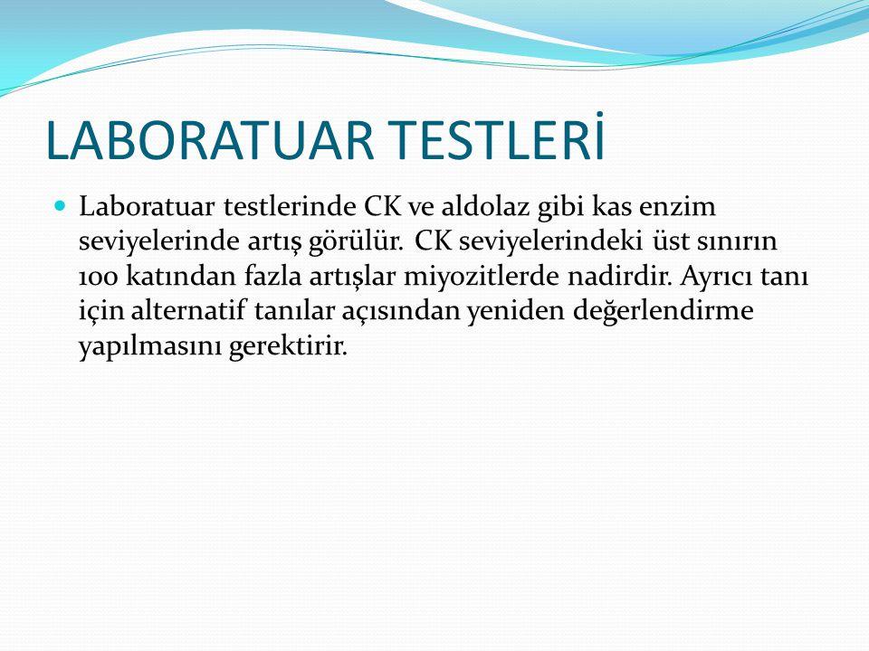 LABORATUAR TESTLERİ Laboratuar testlerinde CK ve aldolaz gibi kas enzim seviyelerinde artış görülür. CK seviyelerindeki üst sınırın 100 katından fazla