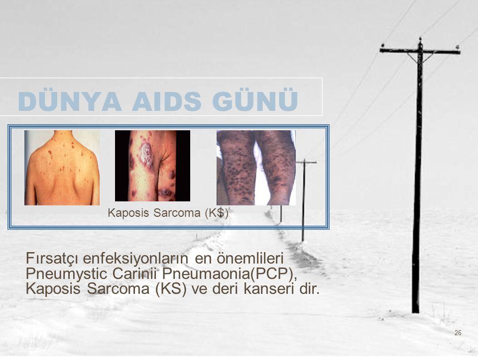 26 DÜNYA AIDS GÜNÜ Kaposis Sarcoma (KS) Fırsatçı enfeksiyonların en önemlileri Pneumystic Carinii Pneumaonia(PCP), Kaposis Sarcoma (KS) ve deri kanser