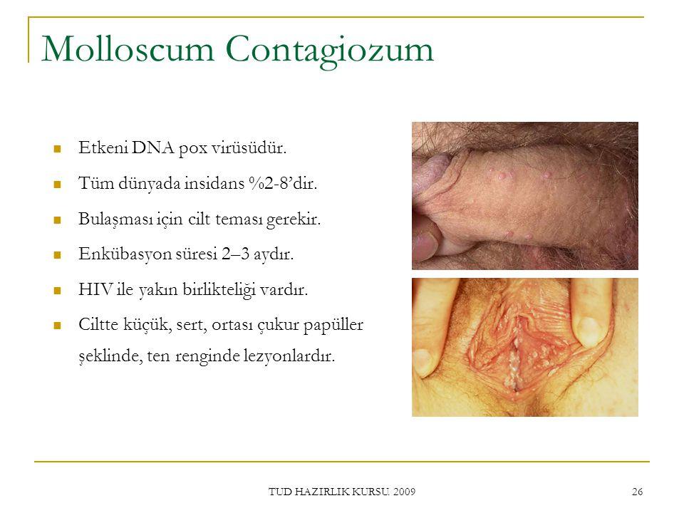 TUD HAZIRLIK KURSU.2009 26 Molloscum Contagiozum Etkeni DNA pox virüsüdür.