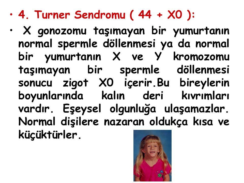 4. Turner Sendromu ( 44 + X0 ): X gonozomu taşımayan bir yumurtanın normal spermle döllenmesi ya da normal bir yumurtanın X ve Y kromozomu taşımayan b