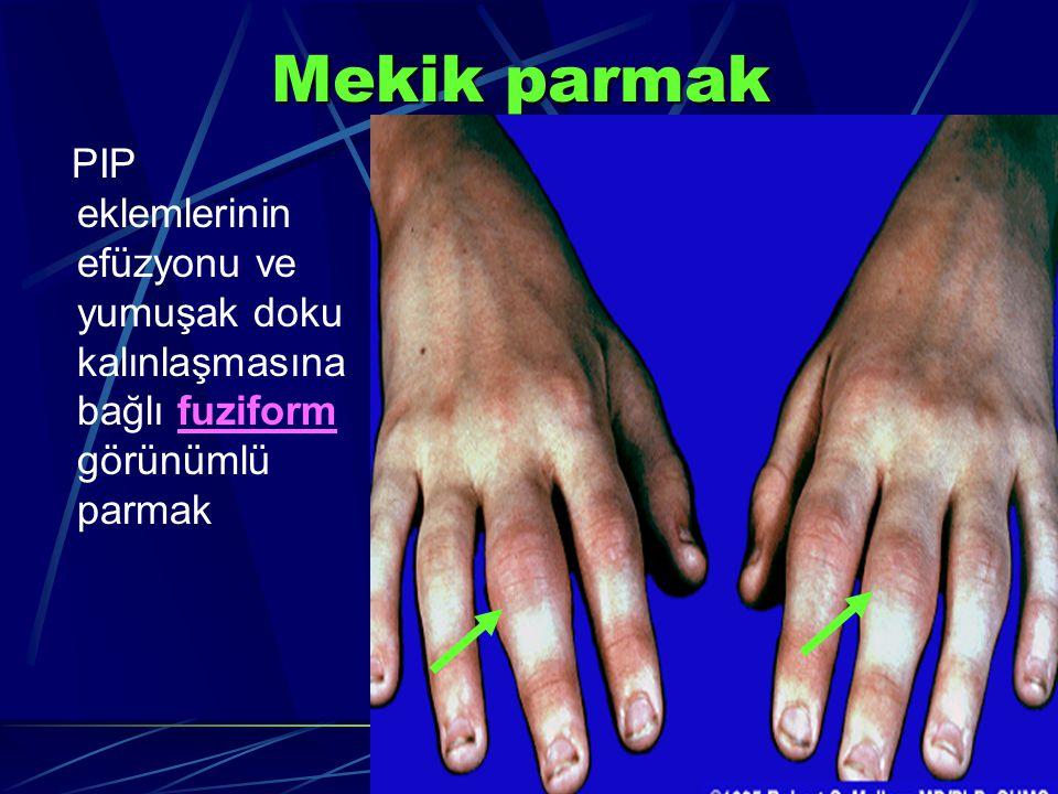 Mekik parmak PIP eklemlerinin efüzyonu ve yumuşak doku kalınlaşmasına bağlı fuziform görünümlü parmak