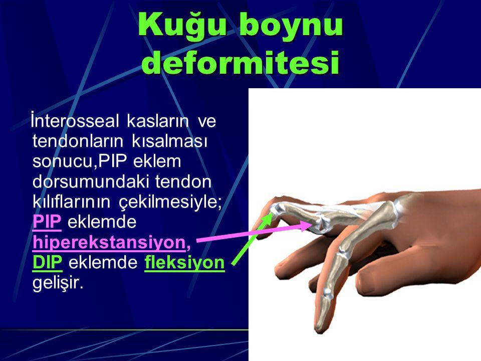 Kuğu boynu deformitesi İnterosseal kasların ve tendonların kısalması sonucu,PIP eklem dorsumundaki tendon kılıflarının çekilmesiyle; PIP eklemde hiperekstansiyon, DIP eklemde fleksiyon gelişir.