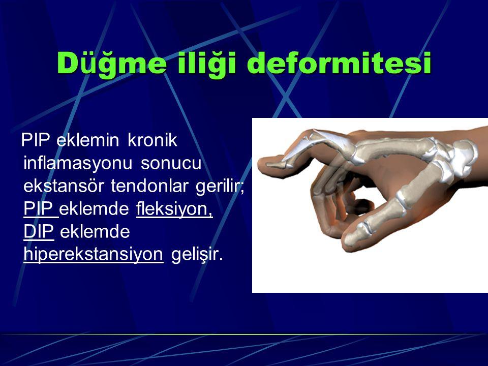 D ü ğme iliği deformitesi PIP eklemin kronik inflamasyonu sonucu ekstansör tendonlar gerilir; PIP eklemde fleksiyon, DIP eklemde hiperekstansiyon gelişir.