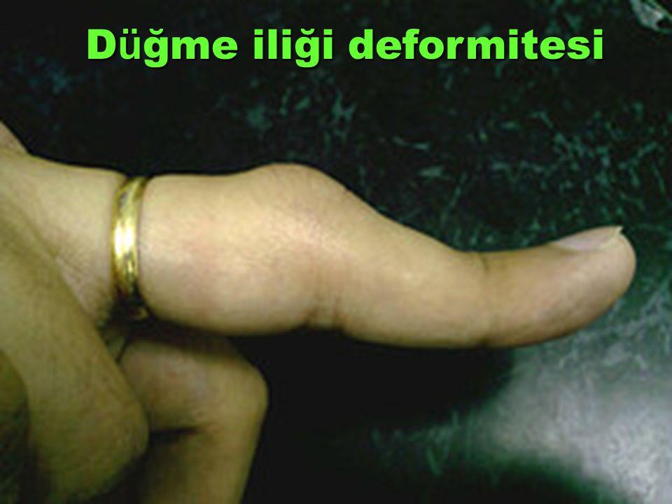 D ü ğme iliği deformitesi