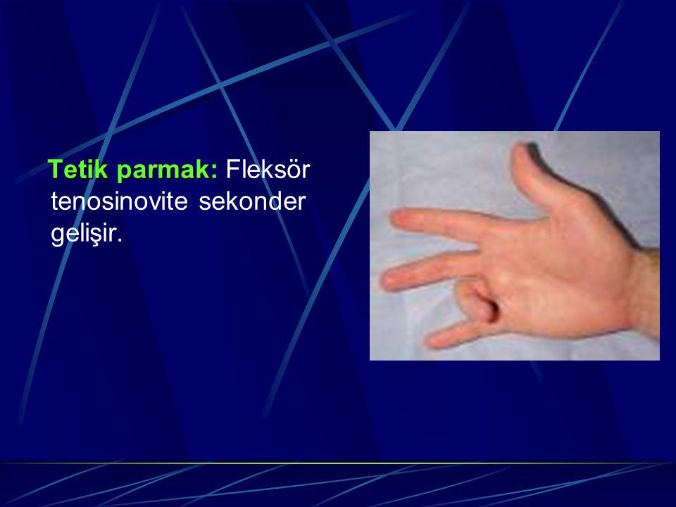 Tetik parmak Tetik parmak: Fleksör tenosinovite sekonder gelişir.