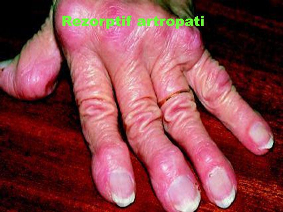 Rezorptif artropati