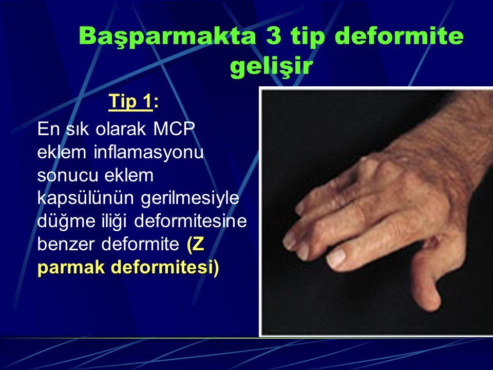 Başparmakta 3 tip deformite gelişir Tip 1: Z parmakdeformitesi En sık olarak MCP eklem inflamasyonu sonucu eklem kapsülünün gerilmesiyle düğme iliği deformitesine benzer deformite (Z parmak deformitesi)