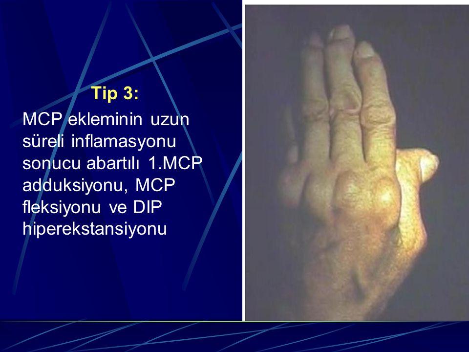 Tip 3: MCP ekleminin uzun süreli inflamasyonu sonucu abartılı 1.MCP adduksiyonu, MCP fleksiyonu ve DIP hiperekstansiyonu