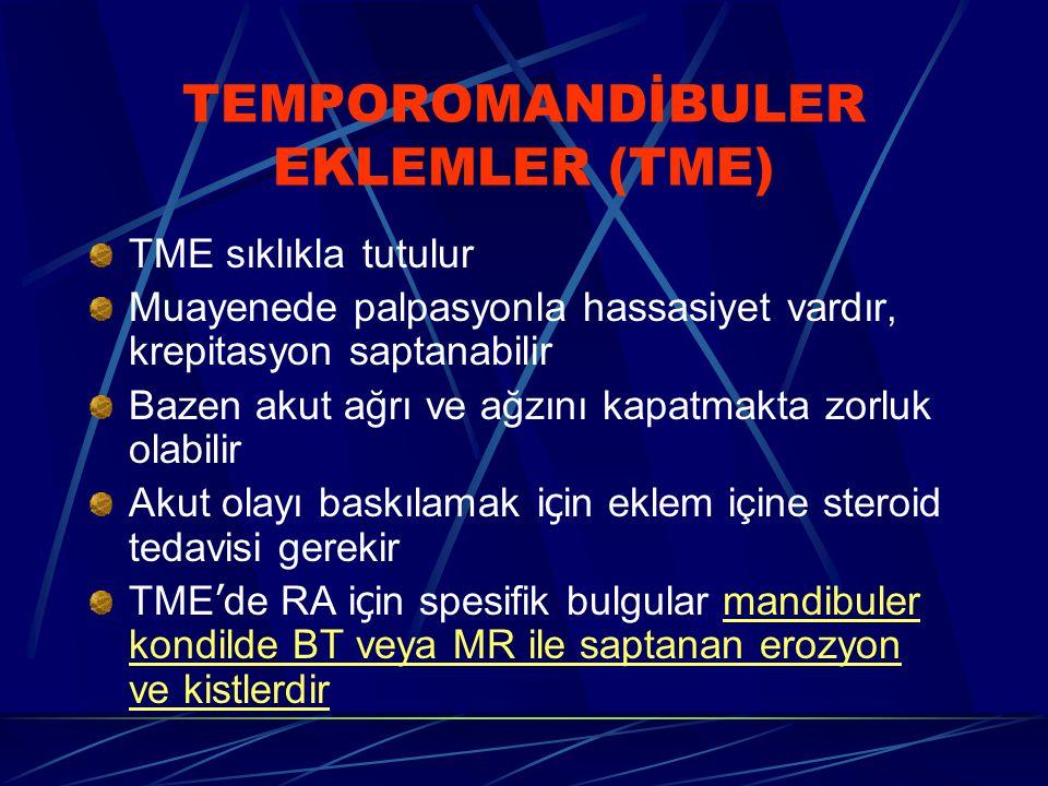 TEMPOROMANDİBULER EKLEMLER (TME) TME sıklıkla tutulur Muayenede palpasyonla hassasiyet vardır, krepitasyon saptanabilir Bazen akut ağrı ve ağzını kapatmakta zorluk olabilir Akut olayı baskılamak i ç in eklem içine steroid tedavisi gerekir TME ' de RA i ç in spesifik bulgular mandibuler kondilde BT veya MR ile saptanan erozyon ve kistlerdir